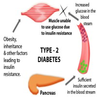 This Is The Real Truth About Type 2 Diabetes