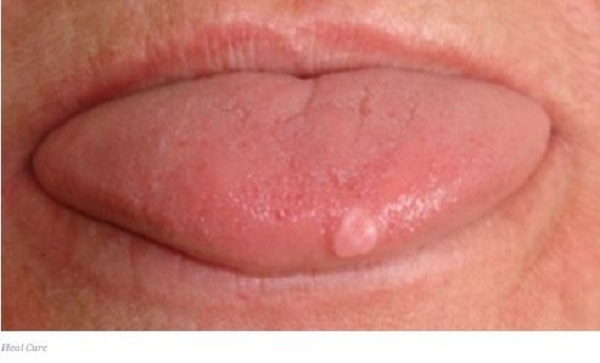 Sores or lesions.