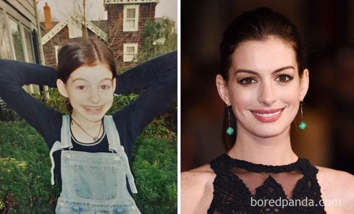 11. Anne Hathaway