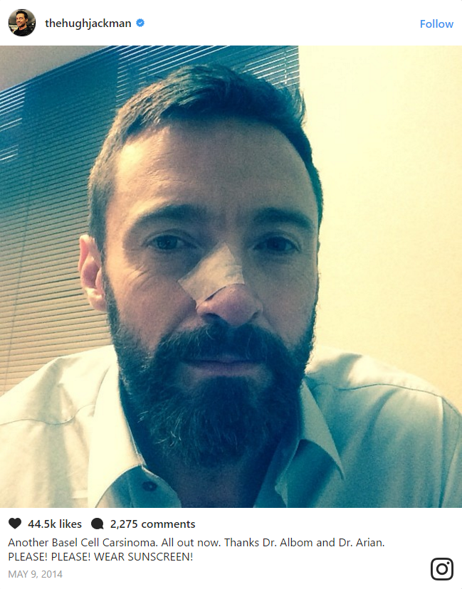 He first received treatment for basal cell carcinoma back in 2013.