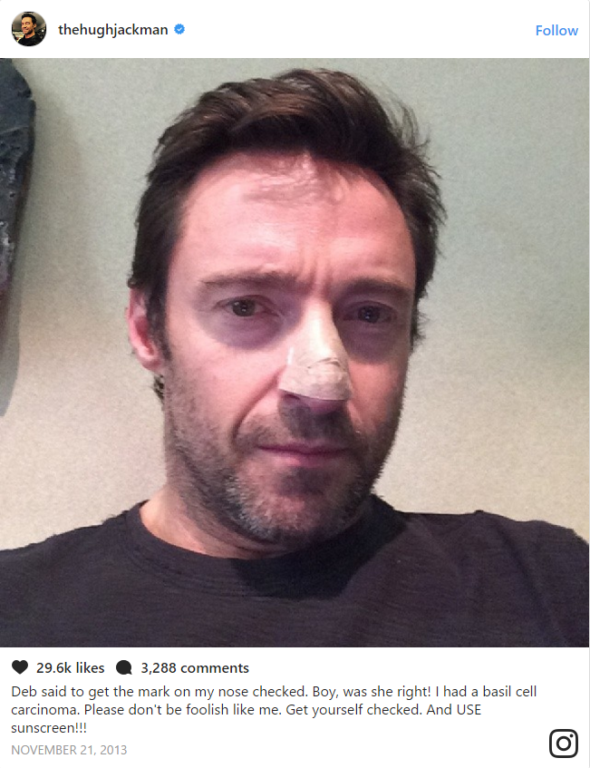 Jackman first had a cancer removed in 2013 after having a mole checked under the advice of his wife Deborra-Lee Furness.