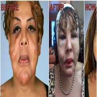 Woman Injected Cement Into Her Face And This Is How She Looks After 10 Years!