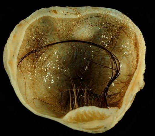 14. Some tumors can grow teeth, be filled with hair, or develop organs of their own. Seriously.