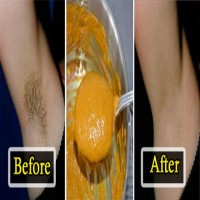 These Natural Remedies To Remove Underarm Hair Can Do Wonders