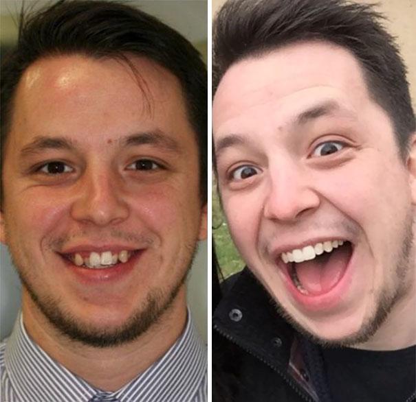 5. Amazing Transformation