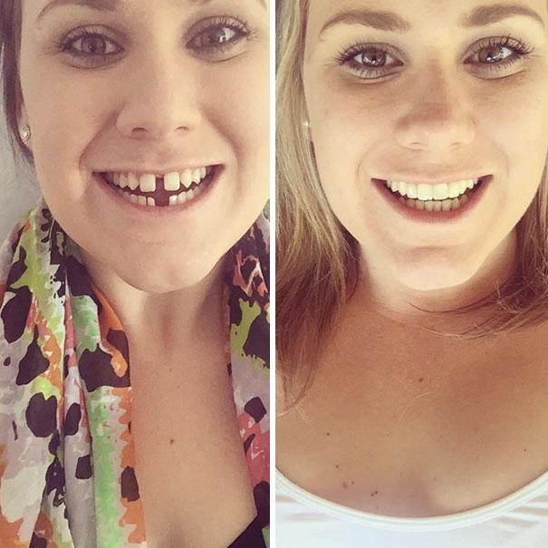 3. Smile Transformation
