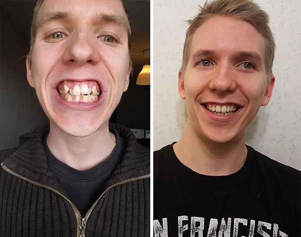9. After Almost Two Years, I Just Got My Braces Off