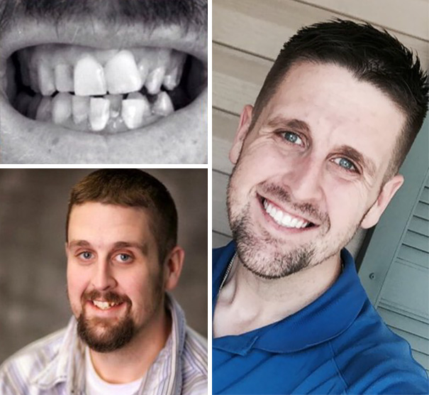 10. Amazing Smile Transformation!