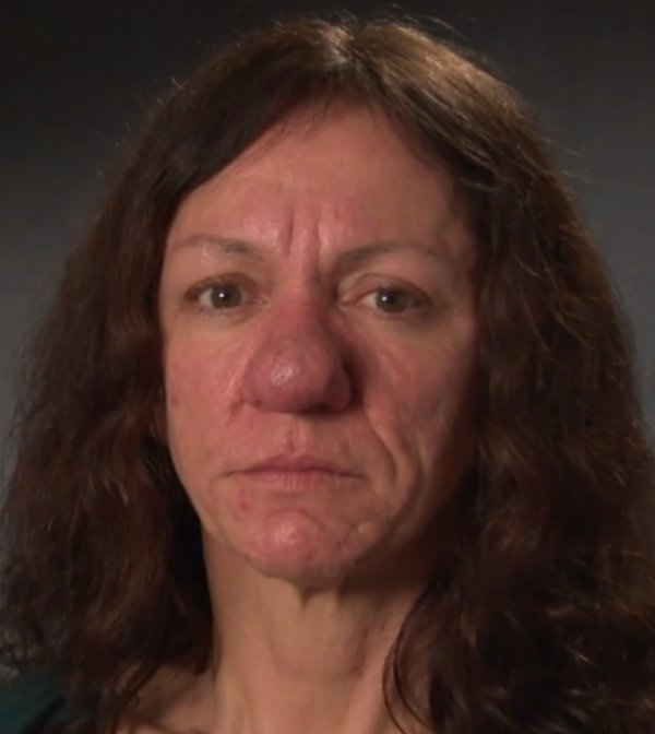For Over 30 Years Her Nose Continued To Grow Rapidly