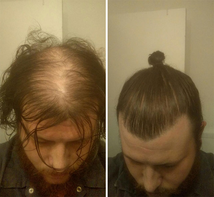 Like most things, however, a man bun has to be done correctly, and the consequences can be dire otherwise.