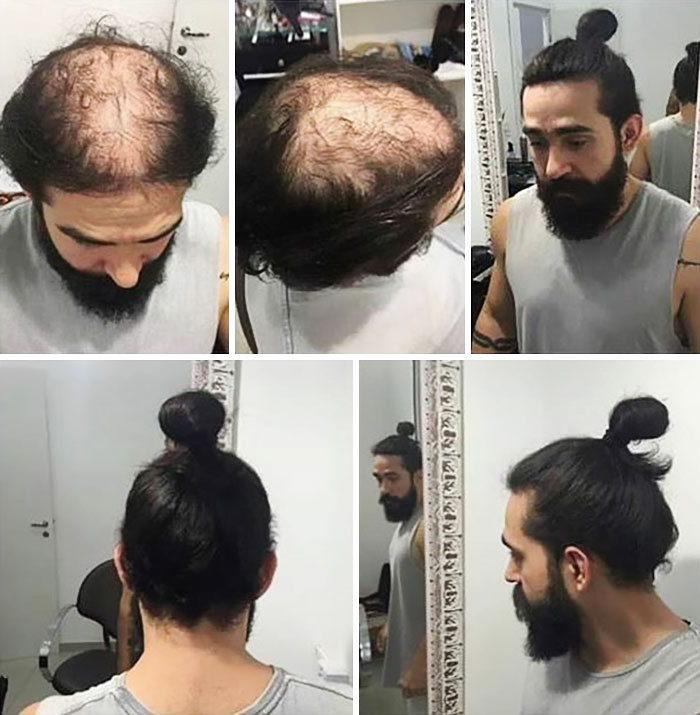 The takeaway here? Rock your man bun, whether it's to hide a pesky bald spot, or just for fun. Just make sure to tie it loose and low, and your follicles will thank you for it.