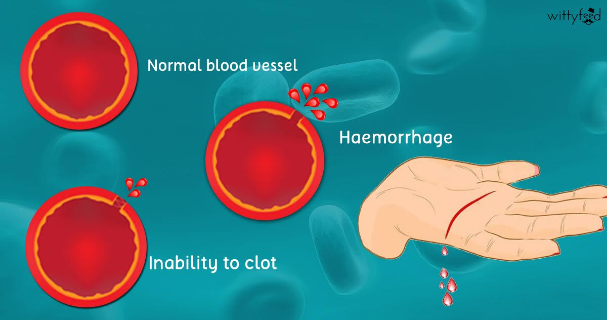 an analysis of the types of hemophilia a blood disease Hemophilia is a monogenic disease (a disease that is caused by a genetic defect in a single gene) there are two types of hemophilia caused by mutations in genes that encode protein factors which help the blood clot and stop bleeding when blood vessels are injured.
