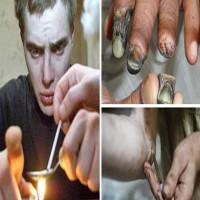 What Happens To Your Body When You Do 'Krokodil', The Zombie Drug