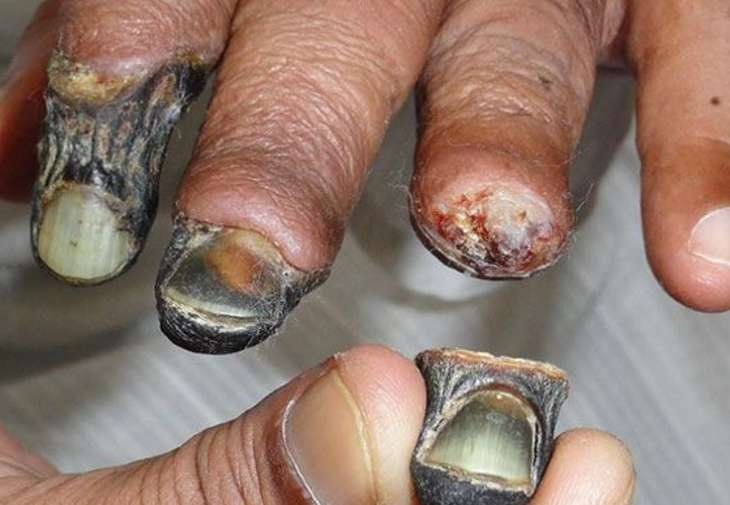 The Russian government has now cracked down on krokodil and the original drug that it is made from.