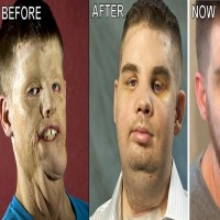 His Face Was Ruined By Car Accident - This Is What He Did To Fix It!