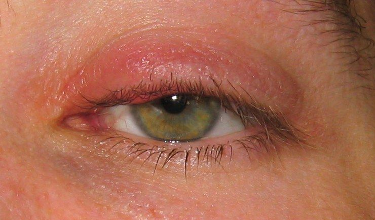 Как лечить веки глаз грибок